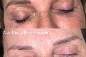 saline-tattoo-removal-2